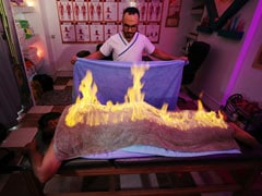 Playing With Fire: Masseur Uses Ancient Technique To Ease Muscle Pain