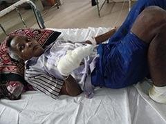 वृद्ध ने मजदूरी मांगी तो पैर की उंगलियां काट दीं और हाथ का अंगूठा तोड़ दिया
