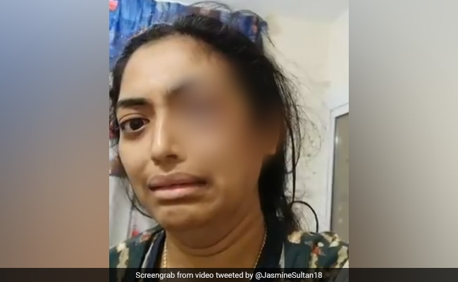 Indian Arrested In Sharjah After Video SOS Of Wife, Bleeding From Eye