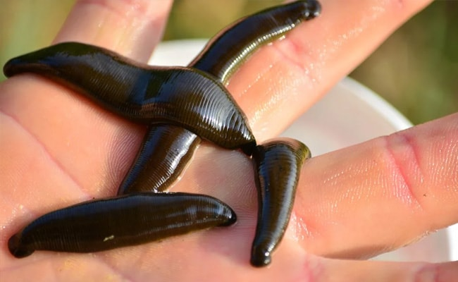 Man Coughing Non-Stop For 2 Months Had Live Leeches Stuck To Throat