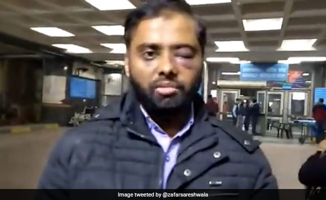 'Don't Feel Safe On Campus Anymore': Jamia Student Who Lost Partial Vision In Clash