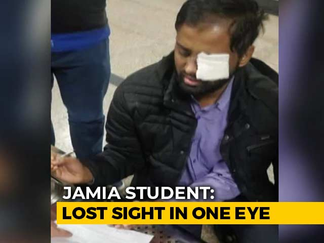 """Video : """"20-25 Armed Cops..."""": Jamia Student Who Lost Sight In Left Eye"""