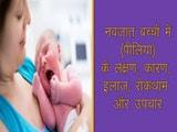 बच्चों में पीलिया (जॉन्डिस): लक्षण, कारण, बचाव और इलाज...