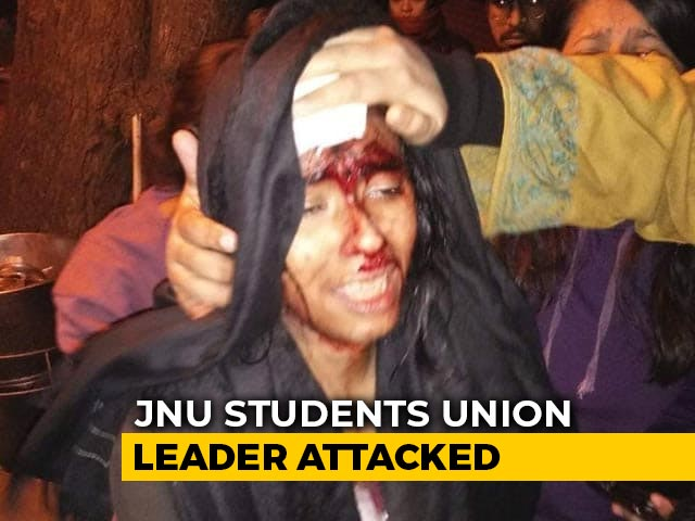 "Video : Watch: ""I Am Bleeding,"" Says Badly Injured JNU Students' Union President"