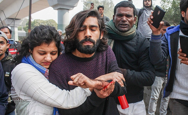 Injured Jamia Student Had To Climb Barricade. Cops Watched