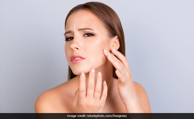 Western Diet May Be Harmful For Your Skin; Here's Why | Western Diet Many problems can occur with inflammation