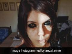 Model Loses Eyesight After Getting Eyeballs Tattooed Black