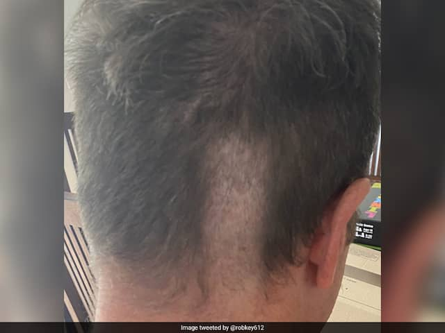 Ex-England Cricketer Posts Picture Of Disastrous Haircut, Wife Apologises