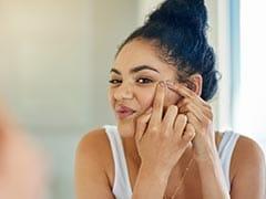 Skin Care: जानें चेहरे पर पिम्पल्स के आने की क्या होती है वजह
