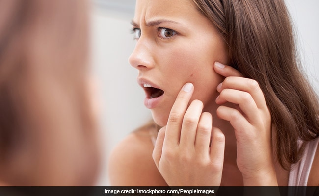 How To Get Rid Of Pimples 6 Overnight Diy Remedies To Try At Home