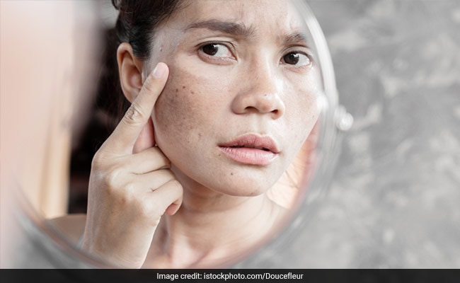 how to remove dark spots on skin