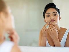 Home Remedies For Acne: पिंपल्स से छुटकारा पाने के लिए ये दो चीजें हैं रामबाण उपाय, जानें चेहरे पर लगाने का तरीका!