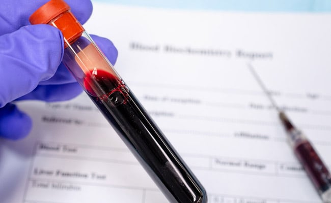 UK Issues Urgent Call For More Indian, South Asian COVID-19 Plasma Donors