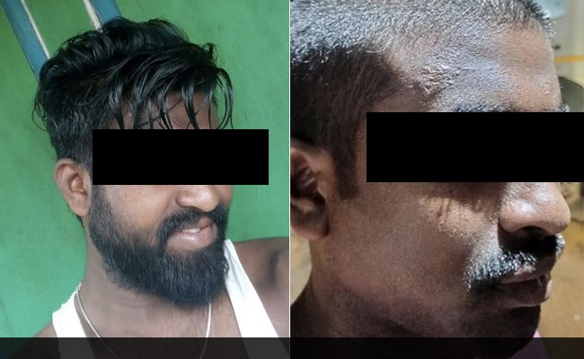 Dalit Man Tortured, His Head Shaved By Andhra Policemen; Three ...