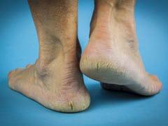Home Remedies for Cracked Heels: इन घरेलू नुस्खों से पाएं फटी एड़ियों से छुटकारा