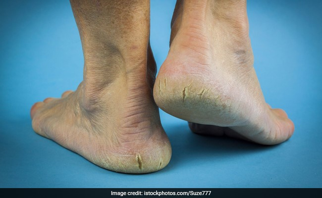 5 Effective Home Remedies For Cracked Heels
