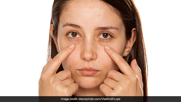 5 Natural Home Remedies to Remove Dark Circles