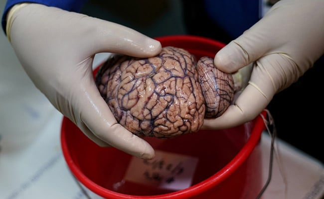 Covid's Cognitive Costs? Some Patients' Brains May Age 10 Years