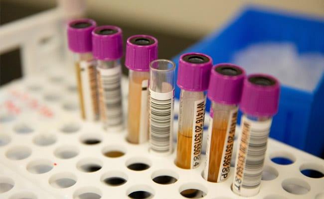 Coronavirus: 47,905 Fresh COVID-19 Cases In India, Up 8% Since Yesterday