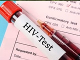 Video : 5 Myths About HIV/AIDS Busted
