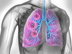 World Lung Cancer Day 2021: Smoking Cessation Is An Integral Part of Lung Cancer Treatment