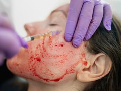 Would You Dare To Get A Vampire Facial? Here's What You Need To Know About It