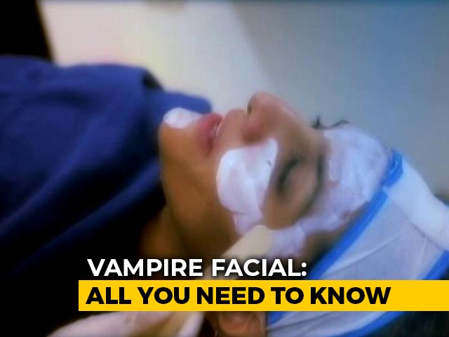 Video : Vampire Facial And All You Need To Know