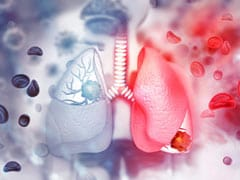 Here's What Constitutes The Treatment For Interstitial Lung Disease