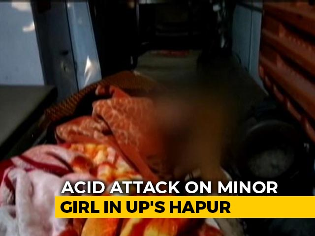 Video : Girl Attacked With Acid In UP, Accused Arrested In 6 Hours