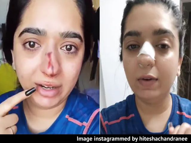 Video : Bengaluru Woman Alleges Zomato Delivery Man Hit Her, Shows Bloody Nose