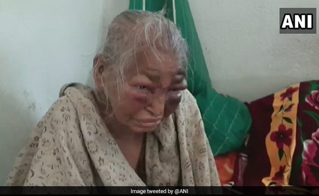 'I Am Scared': BJP Says Party Worker, Mother Beaten By 'TMC Goons'