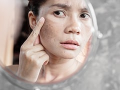 Here's How You Can Fight Pigmentation And Improve Skin Health: Expert Tips