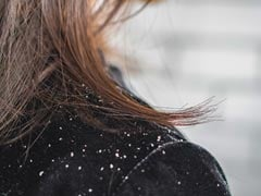 What Is The Main Reason For Dandruff? Dermatologist Shares Ways To Get Rid Of It
