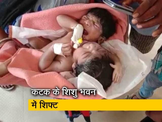 Video : ओडिशा : महिला ने दो सिर और तीन हाथ वाली जुड़वां बच्चियों को दिया जन्म