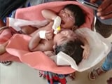 Video : Rare Conjoined Twins Born In Odisha With 2 Heads, 3 Hands