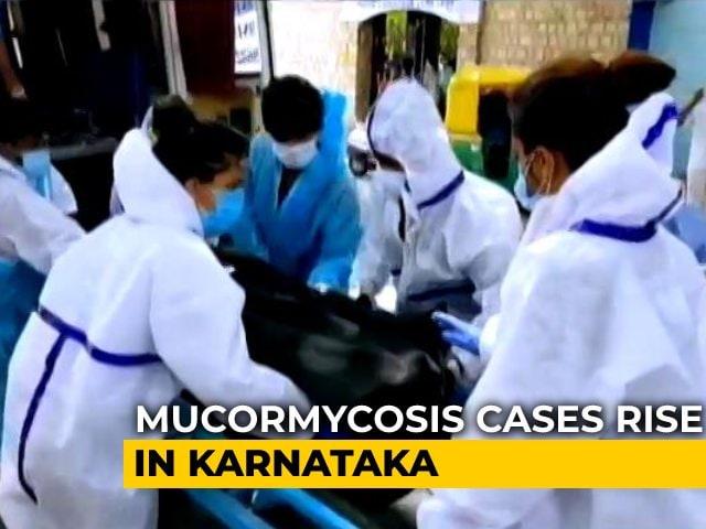 "Video : ""Epidemic Within Pandemic"": Karnataka Changes Steps To Fight Black Fungus"