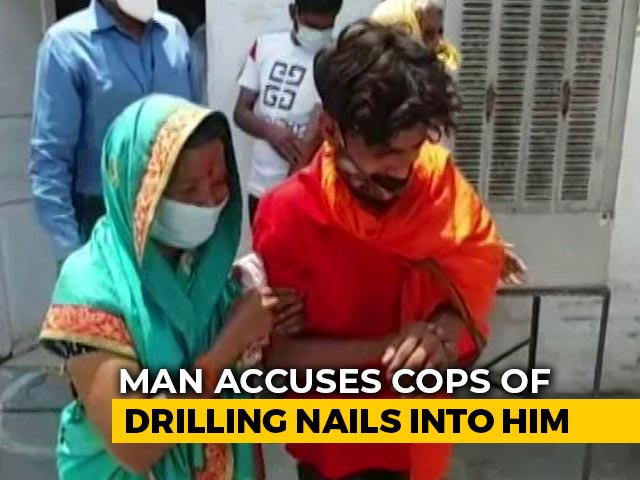 """Video : """"Baseless"""": UP Police As Man Claims They Drilled Nails In His Hand, Foot"""