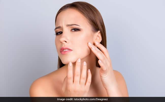 Cracked Skin In Summers: Heres What You Should Do For Smooth And Healthy Skin