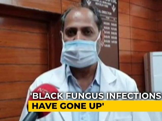 Video : At Delhi's LNJP Hospital, Covid Cases Down, Black Fungus Cases Up