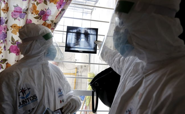 Double-Lung Transplants Rise After Covid 'Honeycombs' Organs: Study