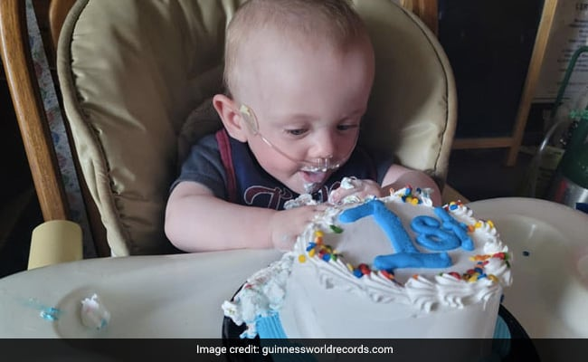 World's Most Premature Baby Celebrates First Birthday. He Was Given 0% Survival Chance