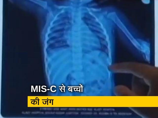 Video : कोरोना की दूसरी लहर में MIS-C के चलते ICU में गए कई मासूम