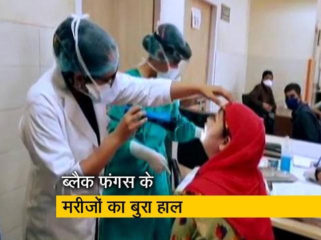 Videos : बिहार: ब्लैक फंगस के मरीजों को न समय से मिल पा रही है दवा और न हो पा रहा ऑपरेशन