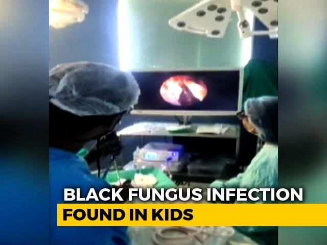 Video : Eyes Of 3 Children Infected With Black Fungus Removed In Mumbai