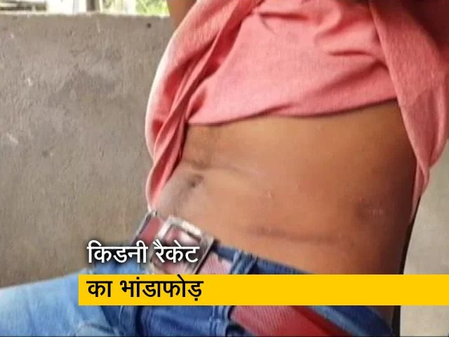 Video : किडनी बेचकर कर्ज चुका रहे लोग, असम में सक्रिय था किडनी रैकेट