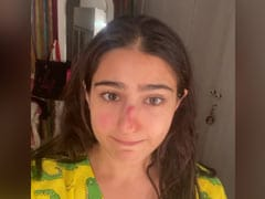 """""""Knock Out"""": Sara Ali Khan Reveals Nose Injury With A Message For Saif Ali Khan, Amrita Singh"""