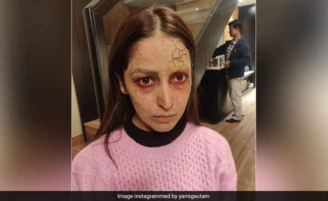Neck Injury, Chilly Nights, Hours Of Make-Up Couldn't Stop Yami Gautam From Filming Bhoot Police