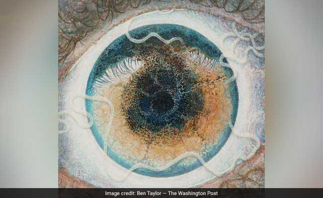 Parasitic Worm Drove An Artist To Depression. He Turned It Into Art