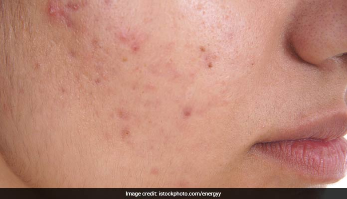 Home Remedies For Pimples & Blackheads By Celeb Dermatologist Kiran Lohia