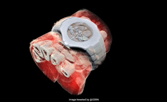 First-Ever Colour X-Ray On A Human Performed In New Zealand